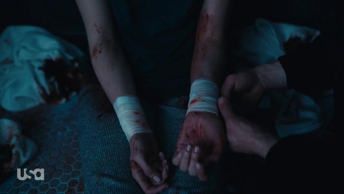 Olivia Gets Bandaged Up (Alt)